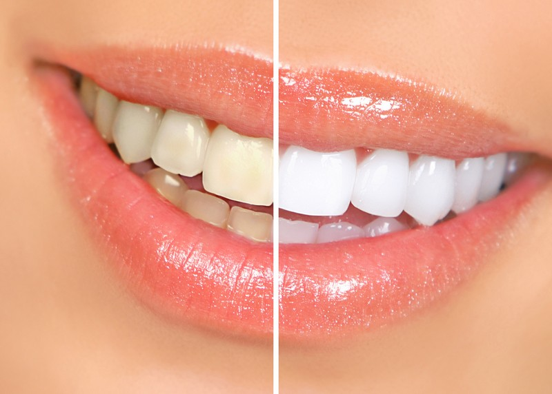 teeth whitening services Chula Vista, CA
